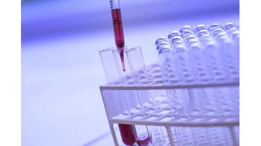 Антитела к короновирусной инфекции SARS CoV-2 IgG